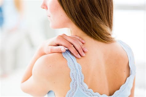 Breast Care Liza Herbal managing skin problems from radiation therapy