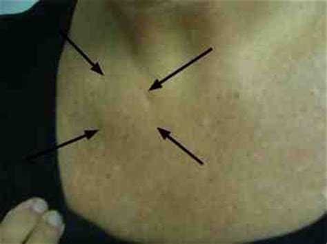 lump on chest tietzes sterno clavicular joint produces a lump on chest