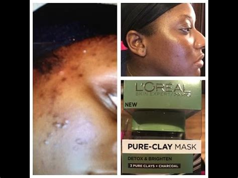 L Oreal Detox Charcoal Mask Blackheads by How I Cleared My Skin Using L Oreal Clay Mask My