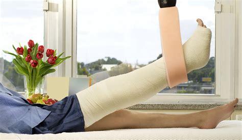 broken leg an open letter to my broken leg