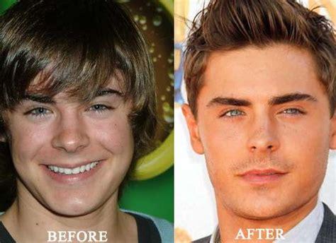 celebrity plastic surgery 24 before after pictures 2015 male celebrity rhinoplasty before and after www pixshark