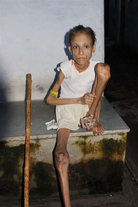 skinniest man alive www imgkid com the image kid has it