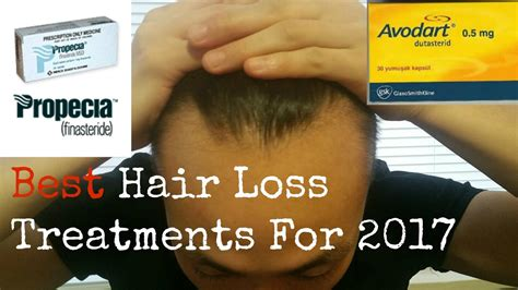 13 Best Products To Treat Hair Loss by Best Hair Loss Treatments 2013 Best Hair Loss Treatments