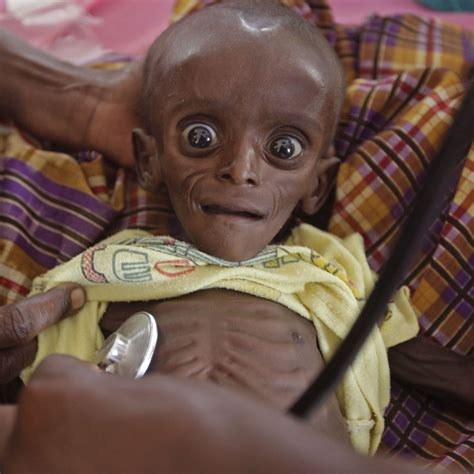 Poor African Kid Meme - somali children need your help 171 worldorphanrelief s weblog