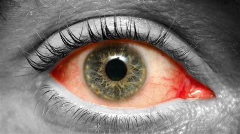 imagenes para wasap de ojos como detectar diabetes dandole un vistazo a tus ojos youtube