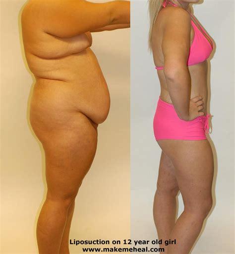 Did Banks Liposuction by Operacja Plastyczna Piersi Co Myślicie Na Ten Temat