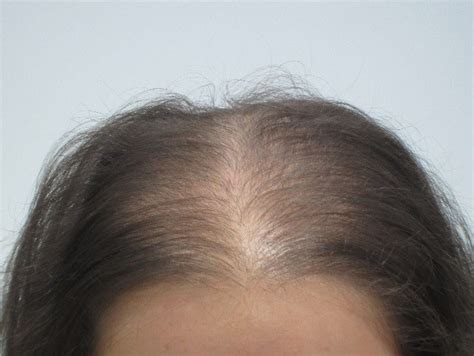 diffuse hair loss male pattern baldness diffuse hair loss the best hair of 2018