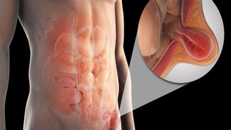 inguinal hernia inguinal hernia symptoms causes and treatments lesson plans