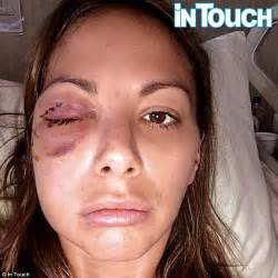 vanderpump rules katie scars from accident kristen doute s battered and bruised face after