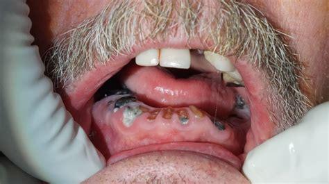 All on Four Dental Implant Procedure   Amarillo   Dentistry ? Amarillo, TX   Dr. Clark Damon