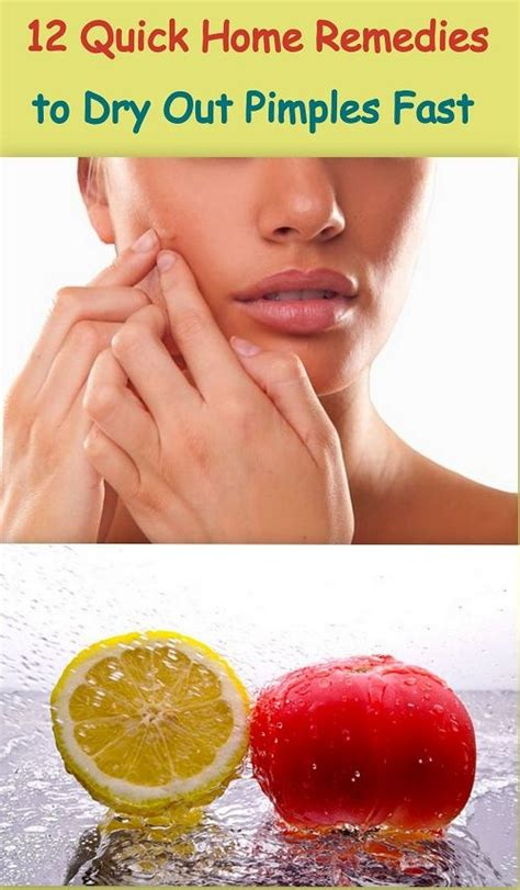 12 Best Home Remedies For Pimples by 54 Best Acne Remedies Images On Tips
