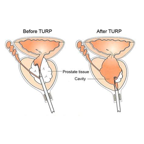 tur p turp surgery advin urology