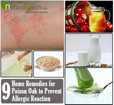 17 best images about home remedies on home