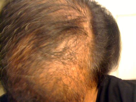 20 month old hair thinning on top shock loss and fue density diffuse thinning wrassman m