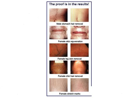 laser tattoo removal za before after laser training