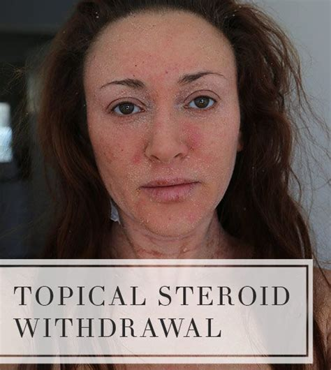 Hydrocortisone Detox by 108 Best Images About Steroid Addiction Topical