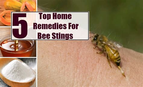 top 5 home remedies for bee stings remedy