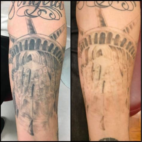 tattoo removal maryland removal ingrid e trenkle md