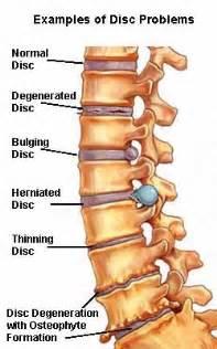 Spondylosis features