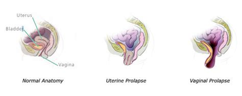 diagram of prolapsed uterus and uterine prolapse gwinnett center