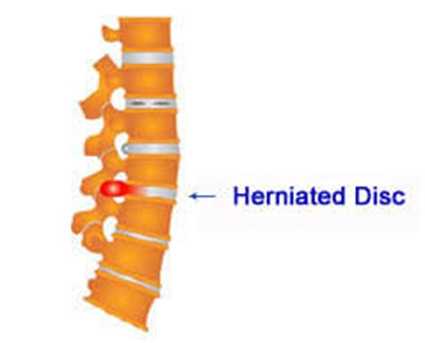 slipped disc surgery cost low cost herniated disc surgery in india affordable herniated disc surgery
