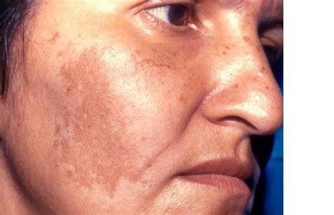 Melasma 5 In 1 melasma about dermatology