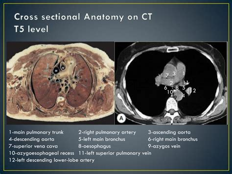 cross sectional ct anatomy ppt imaging anatomy of the mediastinum powerpoint