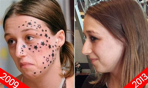 young belgian woman finally has 56 star tattoos removed