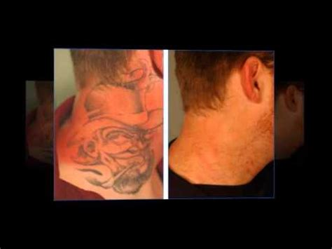 tattoo removal in delaware best removal no lasers all