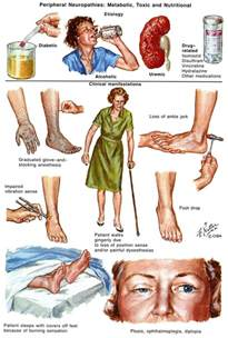 diabetes the real cause and the right cure books 17 best images about neuropathy foot problems on