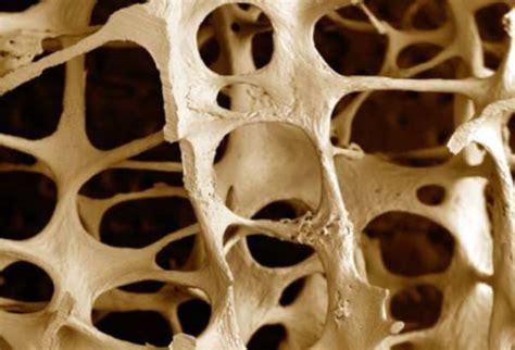 alimenti ricchi di estrogeni per aumentare il alimentazione per l osteoporosi corretta alimentazione