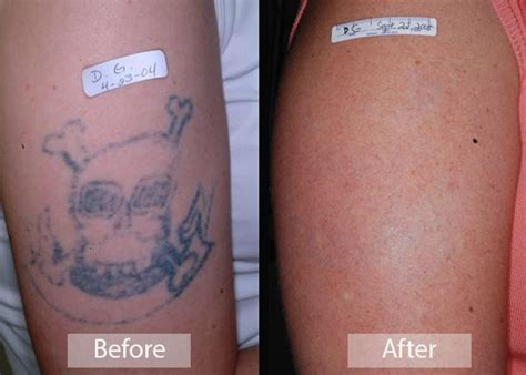 before after gallery emil a tanghetti md center for