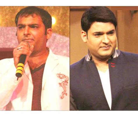 harsha bhogle scar after transplantation 6 bollywood celebs who got hair transplants