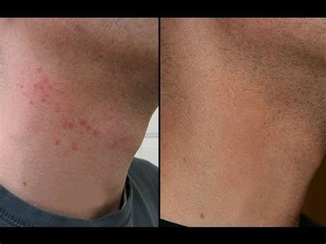 how to cure razor burn bumps on neck legs
