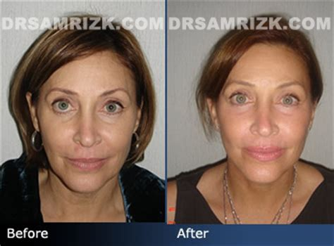 celebrities who have had a neck lift before and after photo of a 54 year old female patient who