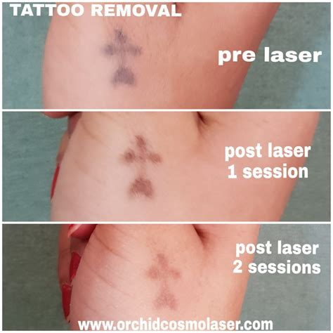 tattoo removal makeup laser removal treatment orchid cosmetic