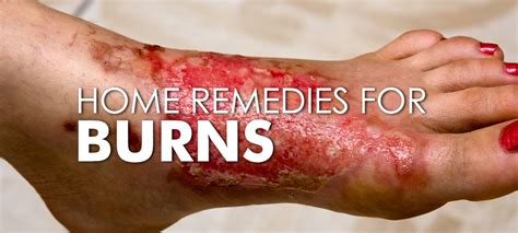 how to heal rug burn on fast 7 best home remedies to heal burns fast