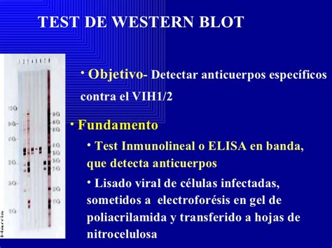 test elisa costo diagn 243 stico laboratorial vih