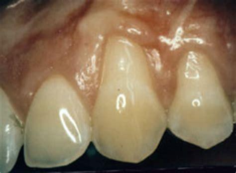 dental crowns boca raton gum grafting ferber dental group