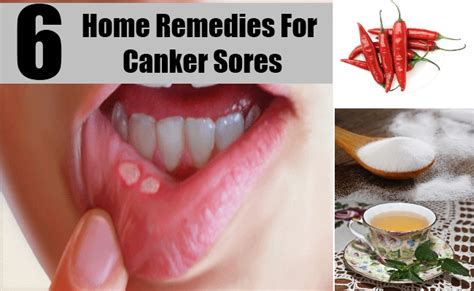6 best home remedies for canker sores treatments