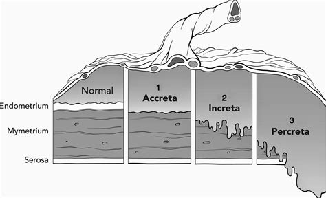 Risk Of Placenta Accreta After 2 C Sections by The Well Rounded Placenta Accreta S Story