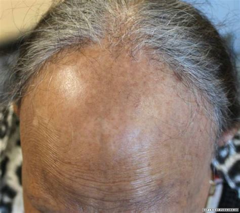 search results for hairstyles for alopecia sufferers
