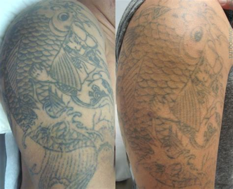 our work tattoo removal results