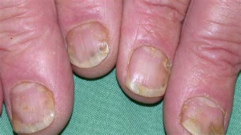 what causes psoriasis 2017 nail psoriasis medical treatment nail psoriasis pictures symptoms and treatments