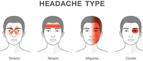 Why Do You Get Headaches When You Detox by 7 Pressure Points For Headaches And Migranine The Power