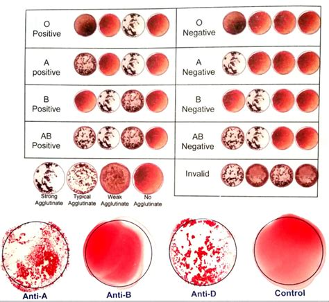 Blood Type Blood Type Pictures