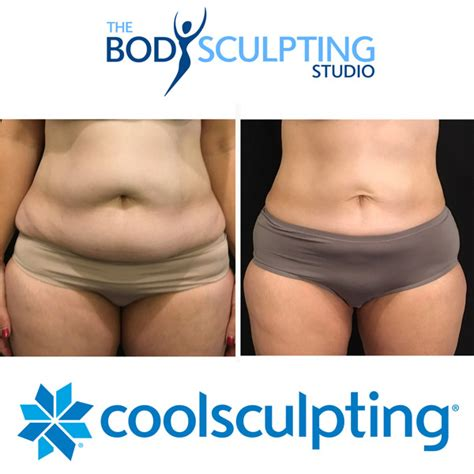 cool sculpture cost coolsculpting 174 photos testimonials coolsculpting the