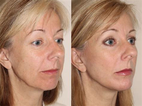 face lifts for women over 50 facelifts for women over 50 search results for facelifts
