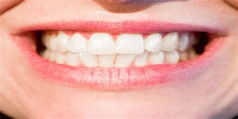 zoom teeth whitening cost mississauga dentists bristol