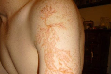 here s what a lightning strike can do to your skin nbc news